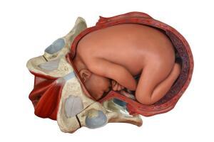 Как должно происходить рождение?