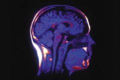 В человеческом мозге находится примерно 100000000 нейронов, и между ними образуются нейронные связи.