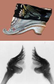 Вид бинтованной китайской ножки в туфлях – это одно, а под рентгеном – другое.