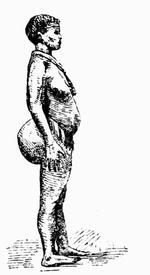 Готтентотская женщина со стеатопигией.
