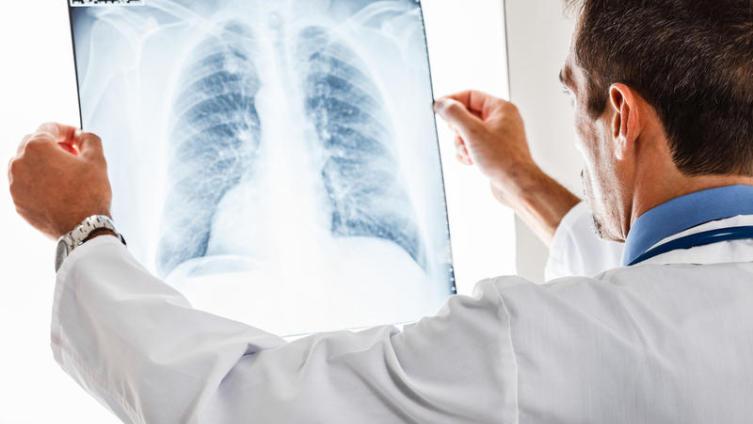 Метастазы в легких. Как распознать причины их появления?