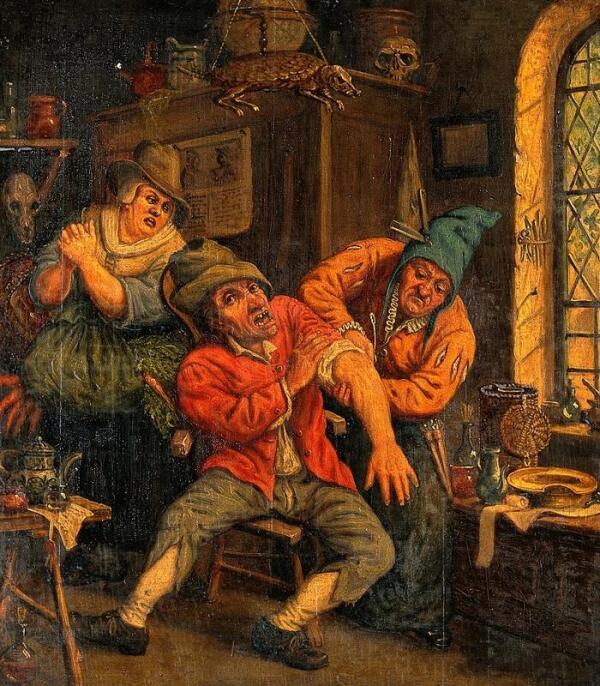 По гравюре Дюсарта Корнелиса, Хирург обрабатывает руку пациента