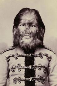 Фёдор Евтихиев - т. н. «мальчик с пёсьей мордой».