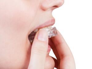 Какую систему коррекции зубов предпочесть?