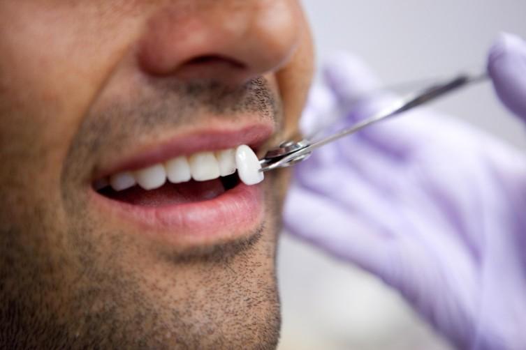 Как в эстетической стоматологии используют виниры?