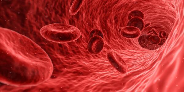 Можно ли не болеть атеросклерозом?