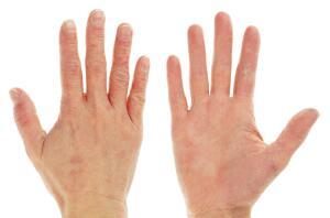 Как лечить трещины на пальцах рук?