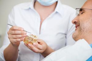 В чем преимущества имплантации All-on-4?
