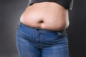 Как подтянуть кожу на животе после родов? Методы борьбы с растяжками