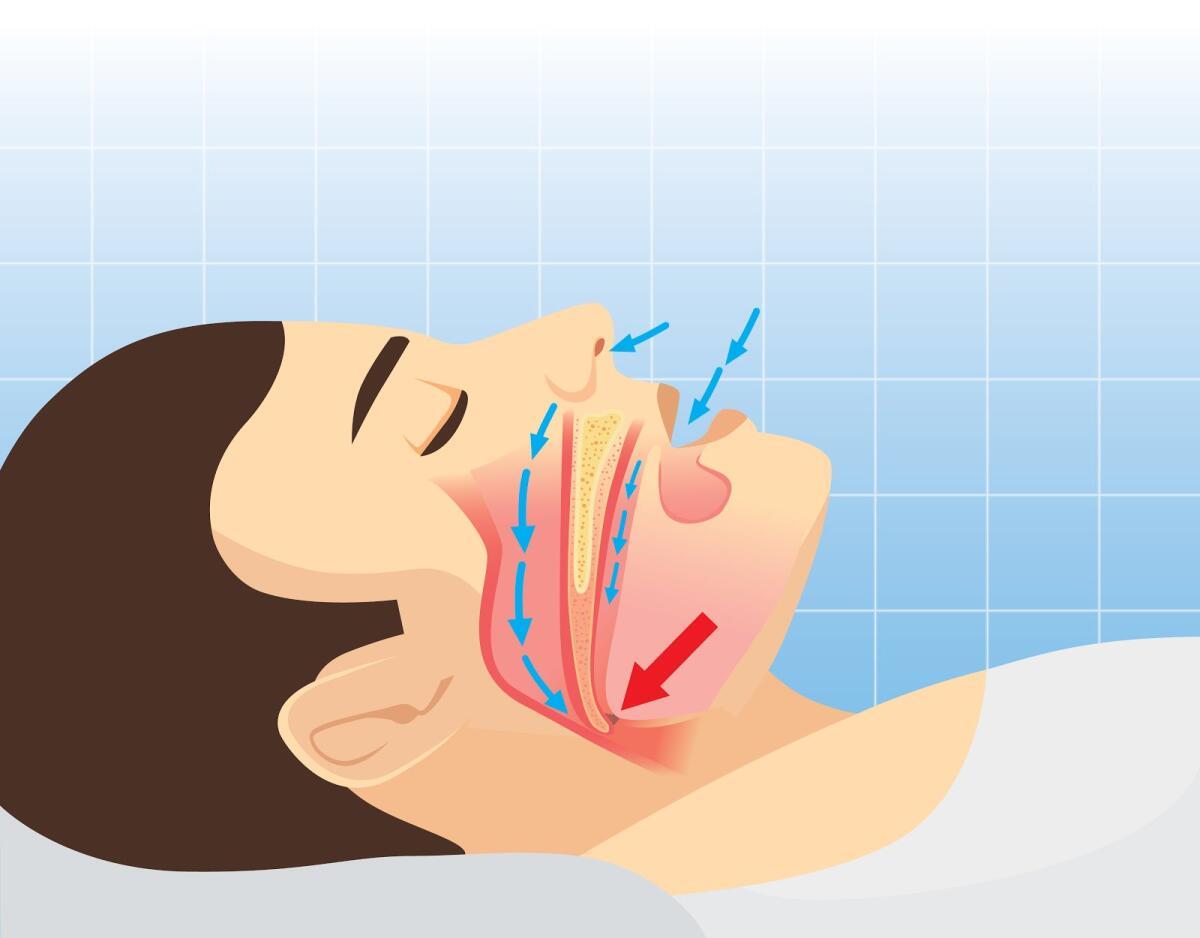 При длительном игнорировании апноэ возможно развитие сердечно-сосудистых заболеваний
