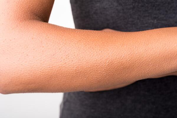 Мурашки по коже. Что это на самом деле?