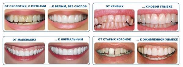 Коррекция зубов винирами цена