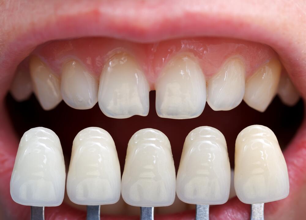 Виниры или художественная реставрация зубов. Сравнительная характеристика виниров и эстетических реставраций зубов