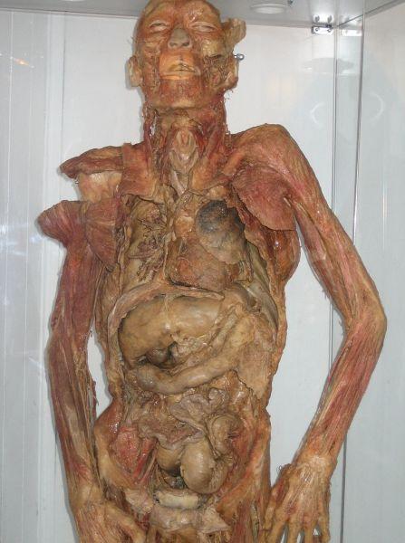 Экспонат целого тела, пластинированный силиконом для Эстонского музея здравоохранения