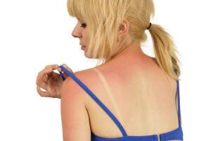 Как лечить солнечные ожоги с помощью народной медицины?