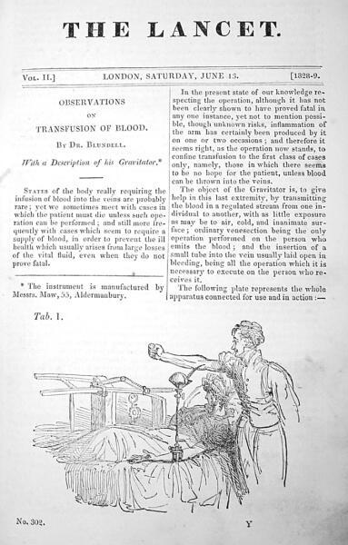 Статья доктора Бланделла о переливании крови из медицинского журнала от 1828 г.
