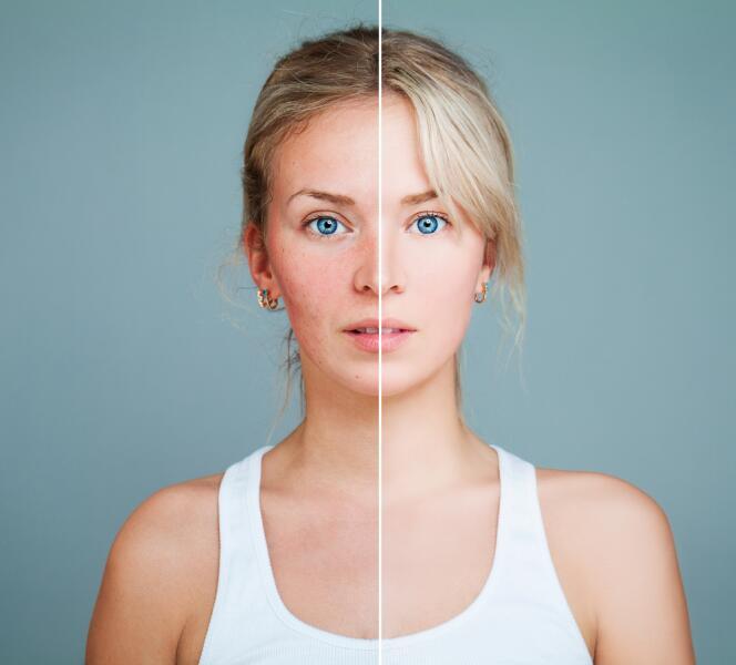 Если кожа проблемная, сначала необходимо устранить противопоказания, а затем приступать к вибромассажу