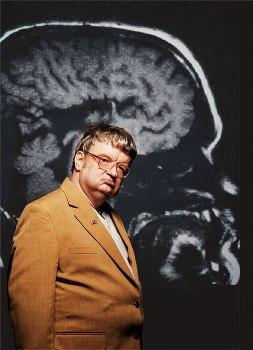 Ким Пик на фоне рентгена своего мозга