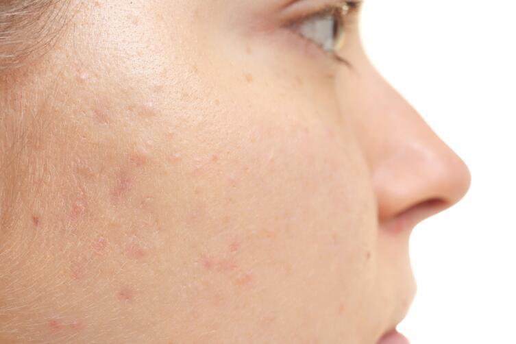 Мезороллер поможет решить проблемы с кожей