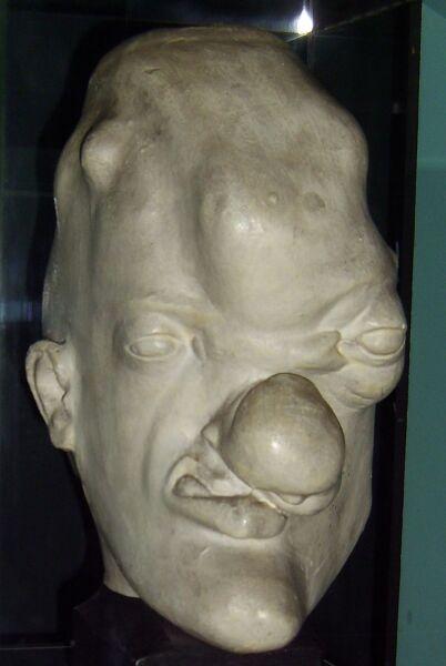Муляж головы человека со следами третичного сифилиса