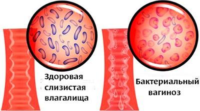 Лечение баквагиноза и молочницы. Все ли может АктиГель?