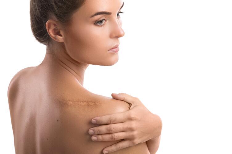 На теле появился непонятный шрам?
