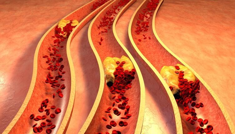 Мы сами можем воздействовать на факторы, способствующие развитию атеросклероза