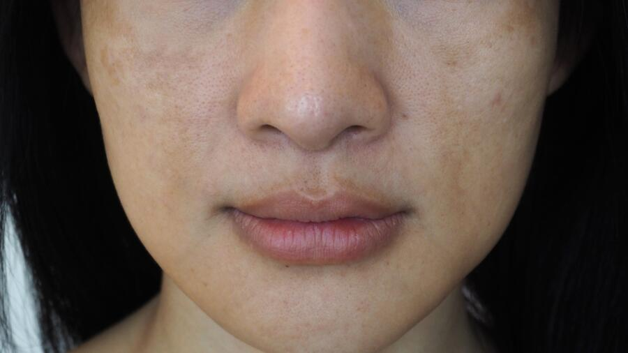Как избавиться от пигментных пятен на лице? Эффективные народные средства