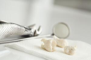 Зуб мудрости иногда режется очень долго, а, значит, воспаление будет постоянным, при этом может быть повышенная температура и сильные боли.