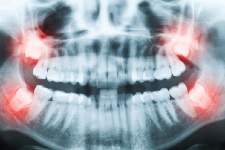Почему зуб мудрости так называется?
