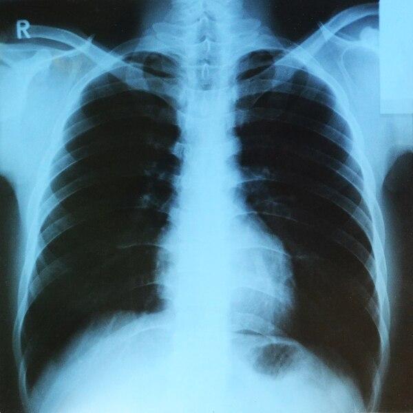 Рентгенограмма грудной клетки человека (прямая передняя проекция)