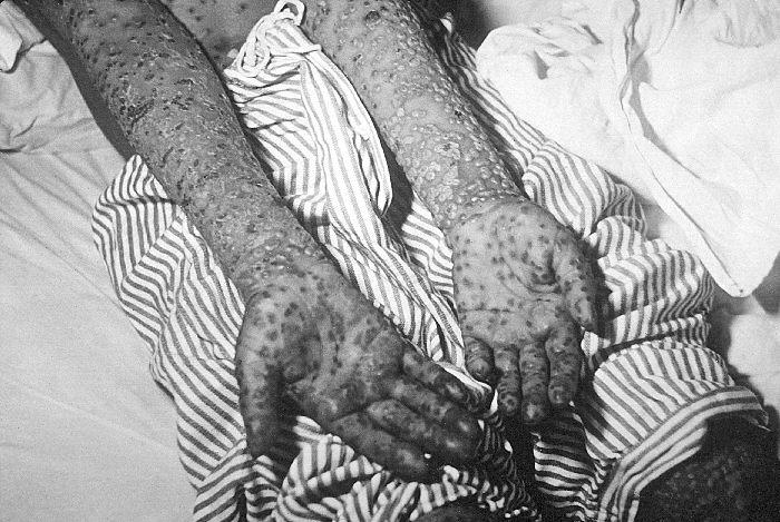 Оспенные корки на руках больного