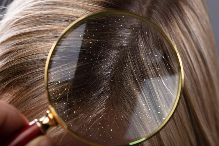 Врачи-дерматологи утверждают, что игнорировать проблему перхоти нельзя