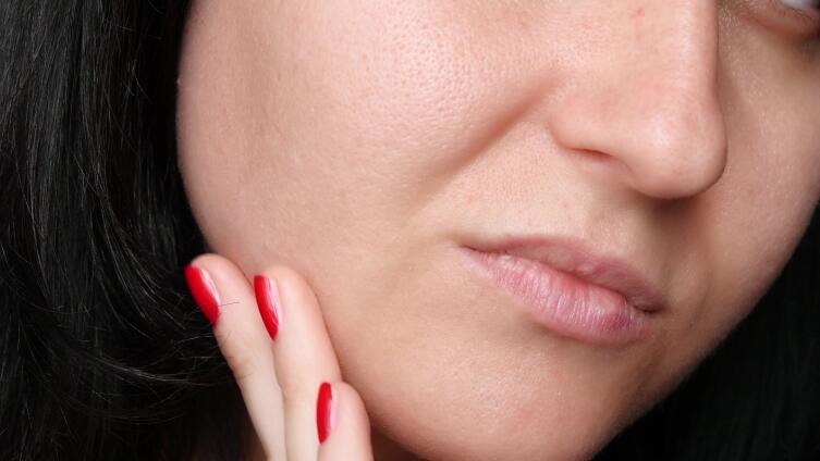 Расширенные поры на лице