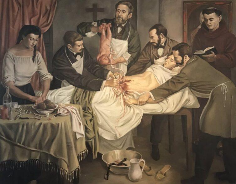 Энрике Грау, «Первое кесарево сечение выполненное в 1844 году в Колумбии»