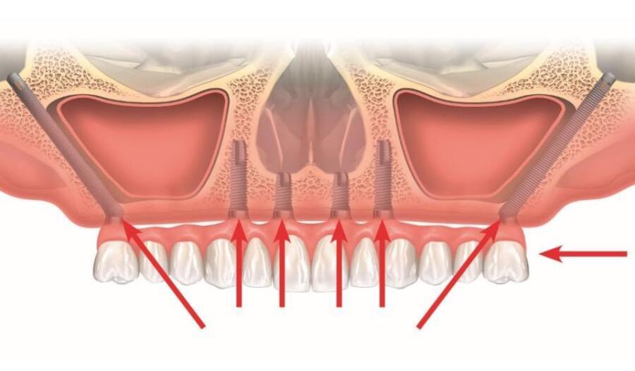 Скуловая имплантация верхней челюсти