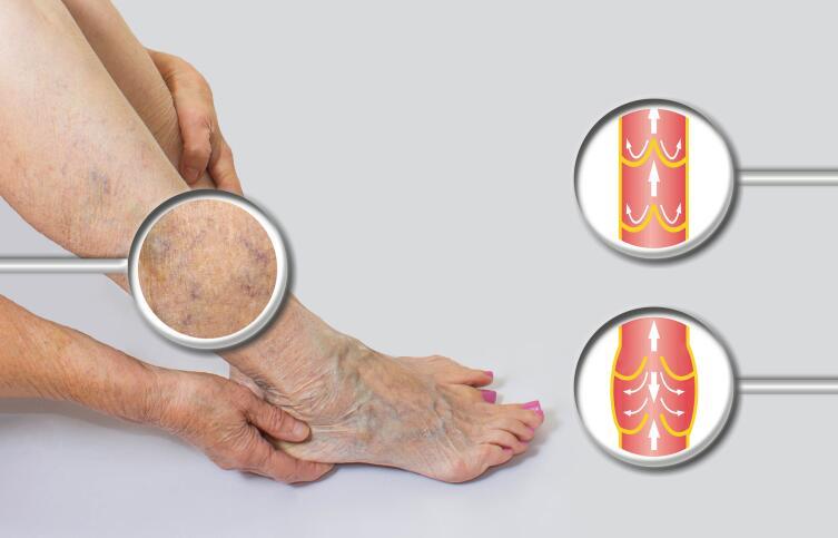 Что желательно знать о варикозном расширении вен на ногах?
