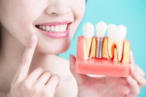 Имплантация зубов: важные особенности операции и её последствия