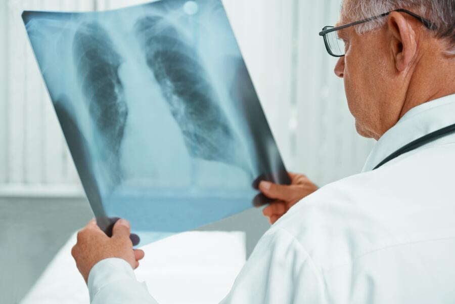 Как распространяется туберкулез?