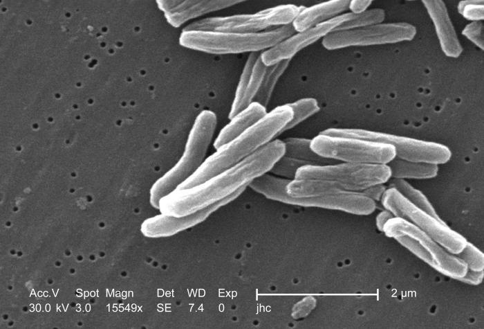Возбудитель туберкулеза - палочки Коха