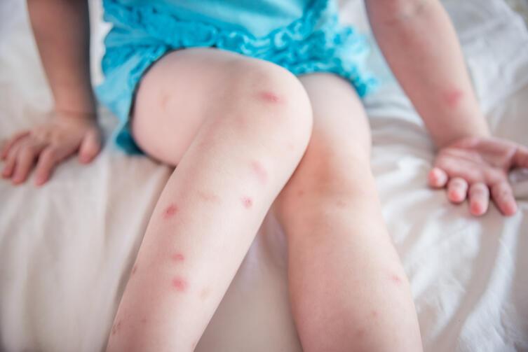 После мытья кожу следует подсушить и нанести на нее любое средство, снимающее раздражение