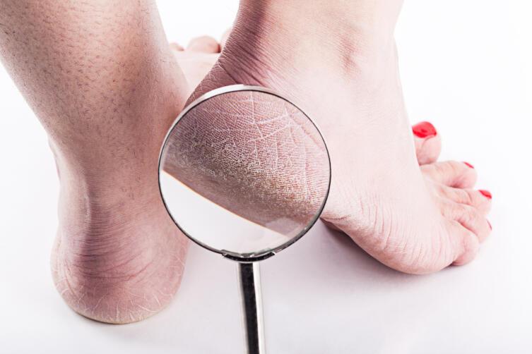 Как проявляется грибок кожи?