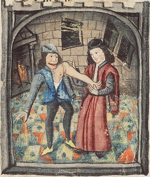 Врач, вправляющий руку. Иллюстрация из трактата Chirurgia Magna французского хирурга Ги де Шолиака, ок. 1450 г.