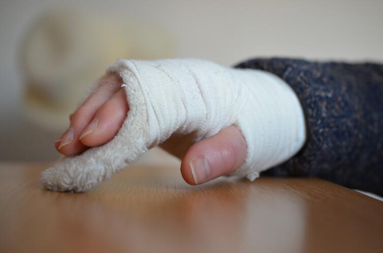Как диагностируют и лечат переломы костей?