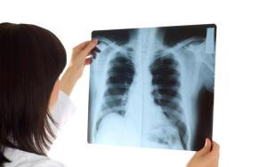 Сколько Нобелевских премий «высветили» рентгеновские лучи?