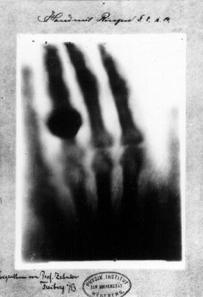 Первый рентгеновский снимок, рука Анны Берты Людвиг, жены ученого