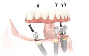 Имплантация зубов методом «All-on-four» (Все на четырех)