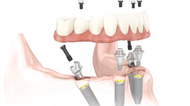 Имплантация зубов методом «All-on-four»