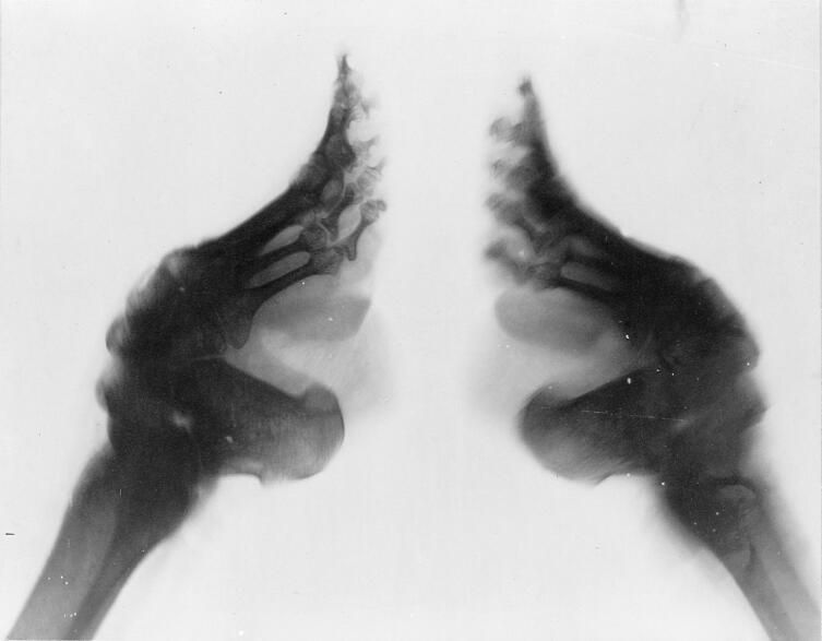 Рентгеновский снимок искалеченных ног