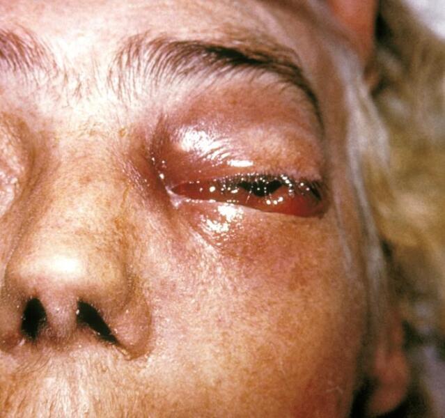 Человек, заболевший мукормикозом